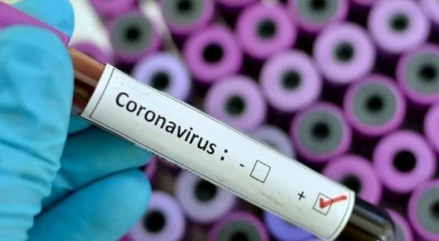 الصحة الإماراتية: تسجيل 571 إصابة جديدة بفيروس كورونا وحالة وفاة واحدة