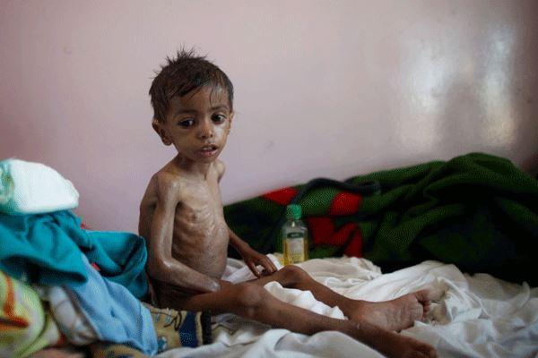 مطالبة أممية برفع الحصار السعودي عن اليمن