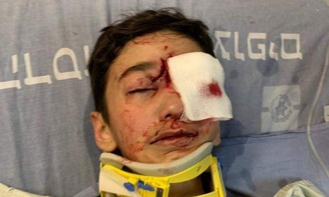إصابة خطيرة لطفل برأسه برصاص الاحتلال في العيسوية