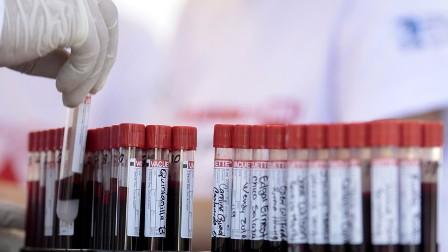 لندن تفتح تحقيقا في فضيحة دم ملوث تسبب في وفاة مئات الأشخاص