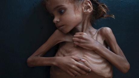 مقابلة مع عائلة يمنية: ضاع الأمل بعد وفاة أمل