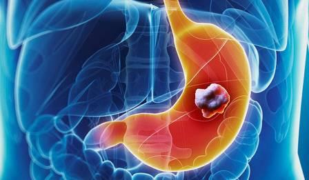 النظام الغذائي غير السليم مسبب لسرطان المعدة