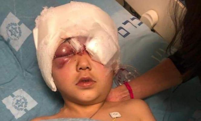 الاحتلال يحقق مع نفسه بشأن فقأ عناصره عين الطفل مالك عيسي