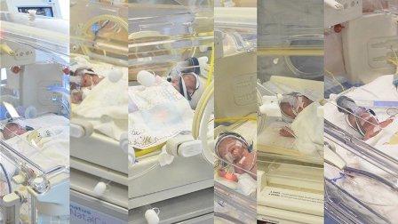 حالة عالمية نادرة في مستشفى القديس جاورجيوس... ولادة 6 أطفال توائم
