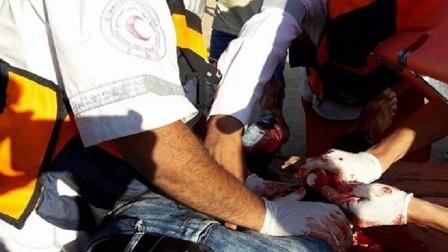 إصابة 3 فلسطينيين بالرصاص و7 مسعفين بالاختناق في قطاع غزة