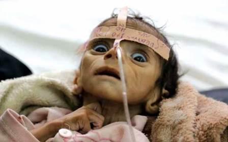 منظمة حقوق الانسان تعلن : اكبر كارثة انسانية في اليمن
