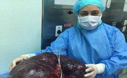 إزالة ورم يتجاوز 17 كيلوغراماً من بطن امرأة !